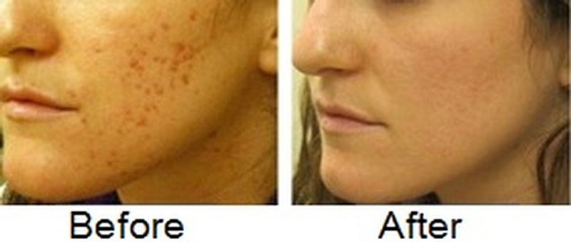Acne Scar Treatment Acne Scar Removal In Lahore Pakistan