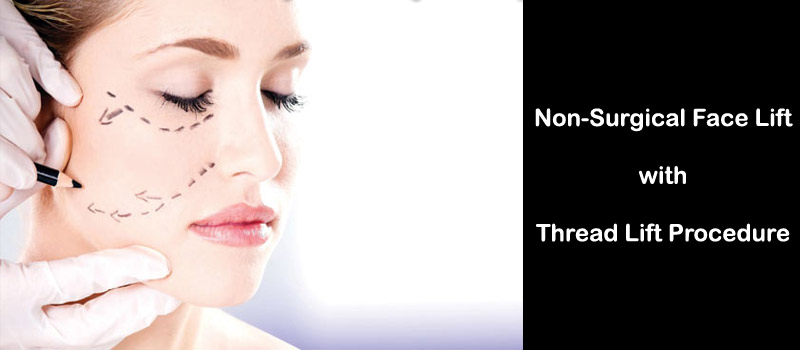 Thread Lift in Lahore   Non-Surgical Face Lift, Pakistan